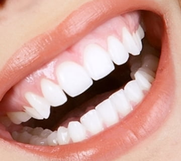 Teeth Whitening Scarborough