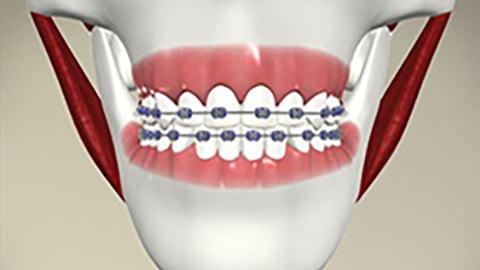 Wisdom Teeth Extraction Scarborough