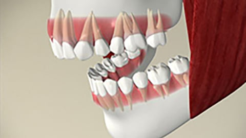 Dental Implants Scarborough