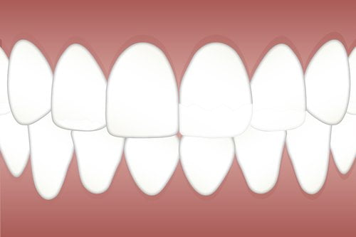 Dental Implants Scarborough